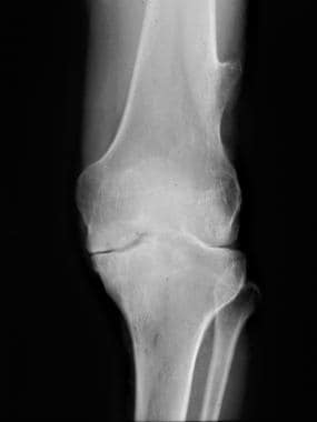 Knee radiograph in a 37-year-old man with moderate