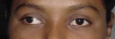 Patient with intermittent exotropia at both distan