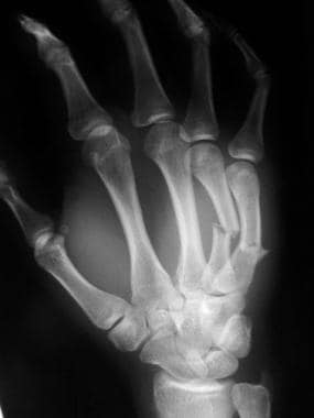 Oblique radiograph of 4th and 5th metacarpal fract