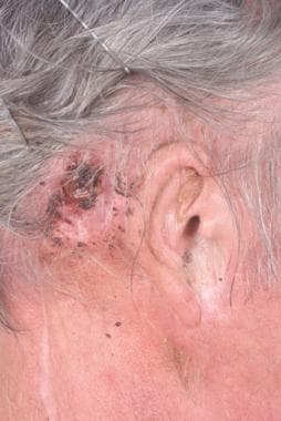 Close-up view of an elderly man with a recurrent s