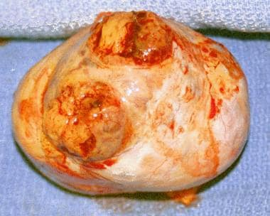 Granulosa cell tumor excised from a woman aged 44