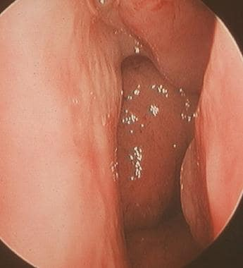 A rigid rhinoscopy photograph of the posterior nas