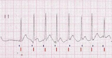 Lead II rhythm strip of a surface ECG from a patie