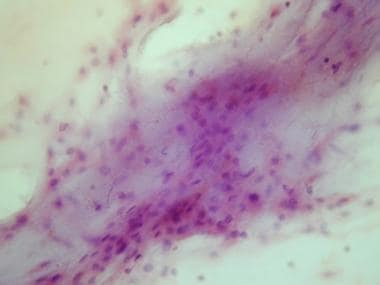 Cytologic preparation demonstrating a sheet of low
