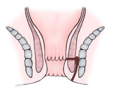 Intersphincteric fistula.
