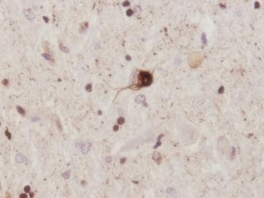 Amyotrophic lateral sclerosis. Cytopathology of af