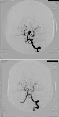 Endovascular coiling of large basilar tip aneurysm