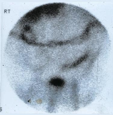Scan obtained with technetium-99m hexamethylpropyl