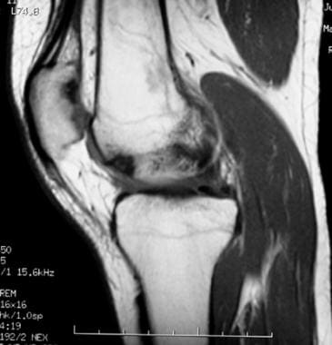 Extensor mechanism injuries of the knee. This 42-y