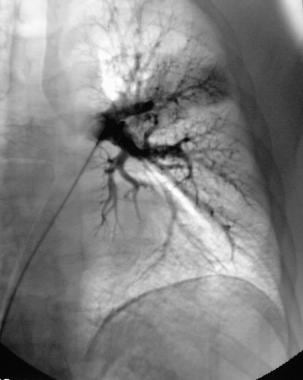 Pulmonary angiography. Left pulmonary angiogram wa