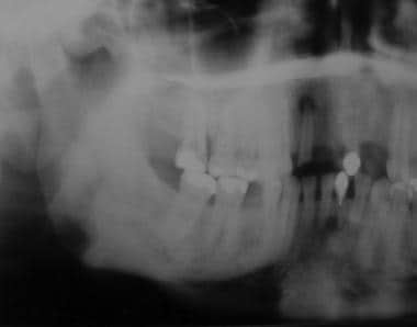 Radiograph taken before extraction of second maxil