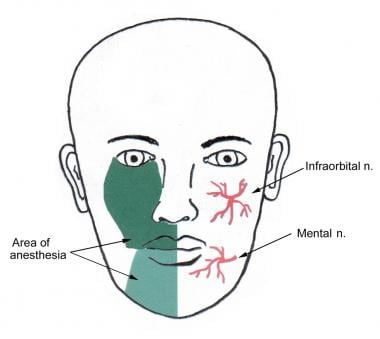 Areas of regional nerve blocks for the lips.