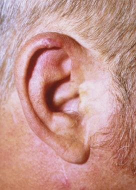 External Ear Benign Tumors: Overview, Anatomy of the