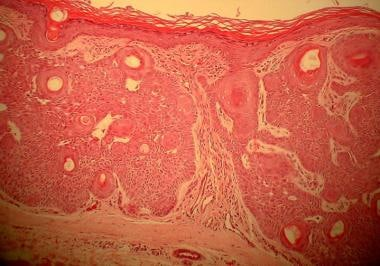 Tumor of the follicular infundibulum shows epiderm