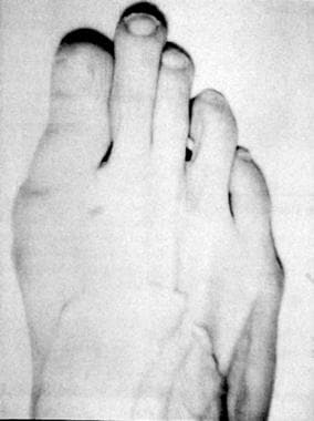 Morton foot, wherein second ray (metatarsal and co