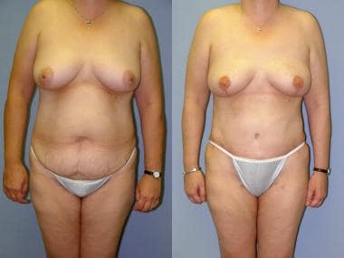 Before and after bilateral prophylactic skin-spari