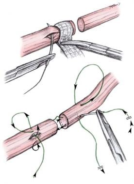 Kirchmayr tendon laceration repair suture techniqu