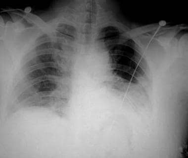Left hemothorax in patient with rib fractures.
