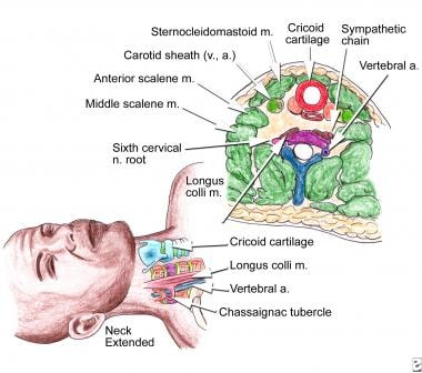 When Are Nerve Blocks Indicated For The Treatment Of Chronic Pain