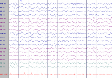 Asymmetric sleep spindles. This EEG is from a 12-y