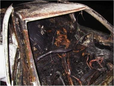 Image following a typical car fire.