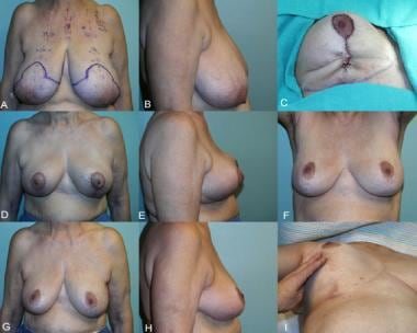 Simplified vertical breast reduction in a 34-year-