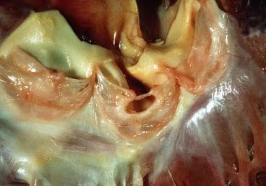 Aortic valve: healed endocarditis. Note the gaping