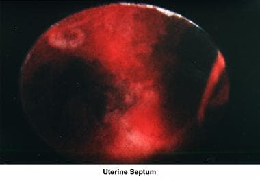 Infertility. Uterine septum. Image courtesy of Jai