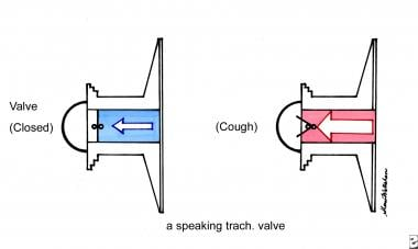 Diagram of a speaking tracheostomy valve.