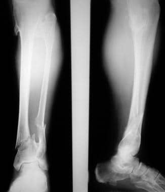 Multiple osteochondromatosis. Fractures of the low