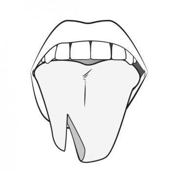 Complex Tongue Laceration Overview Indications Contraindications