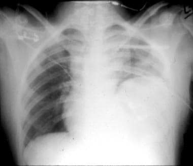 Posteroanterior chest radiography depicts an eleva