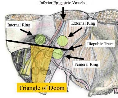 Inguinal anatomy: triangle of doom.