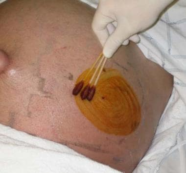 Paracentesis. Application of antiseptic solution.