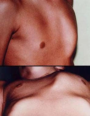Pectus carinatum. Photograph courtesy of K. Kenigs