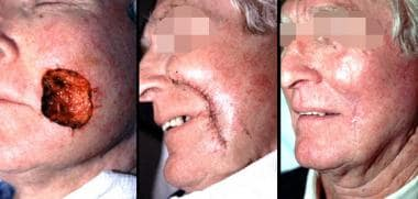 Left: Large lower cheek defect with adjacent skin