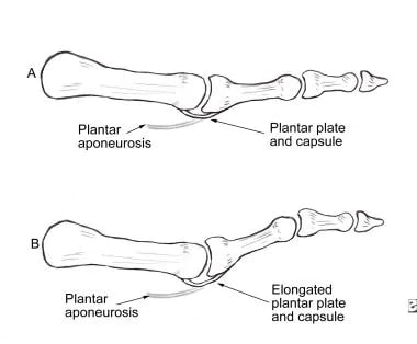 Pathomechanics of hammertoe deformity. Elongated p