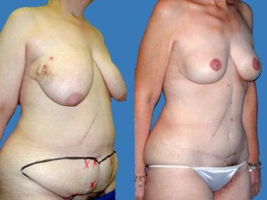 Before and after bilateral mastectomy for ductal c