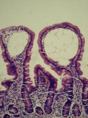 Intestinal villi of normal height with dilated lym