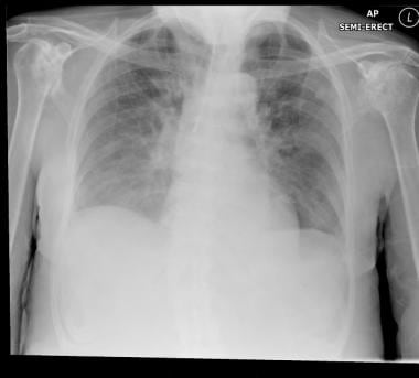 Chest radiograph of the same patient as in the ima
