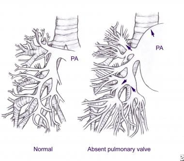 Pulmonary artery branching in a healthy person and