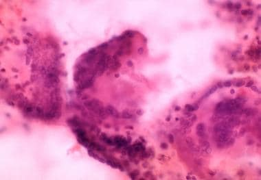 Three multinuclear, giant cell granulomas observed