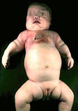 Newborn with Ellis–van Creveld syndrome. Note the