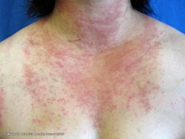Polymorphous light eruption on the chest. Courtesy