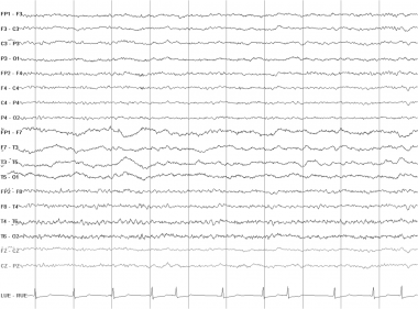 Continuous polymorphic delta. This EEG is from a 2