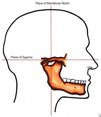 Lateral view of mandibular notch and plane of zygo