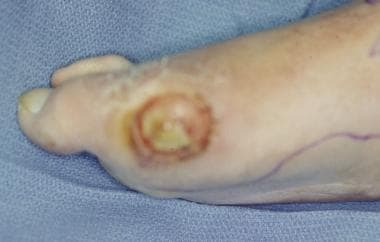 Chronic diabetic ulceration with underlying osteom