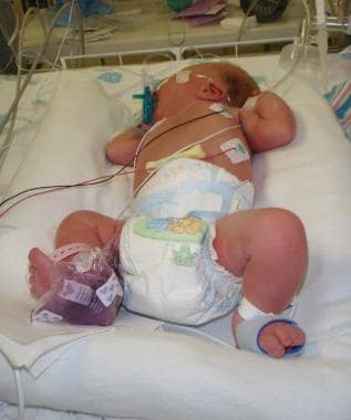 Infant positioning for heel stick procedure. Note