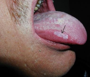 A 60-year-old male with a 2-week history of tongue