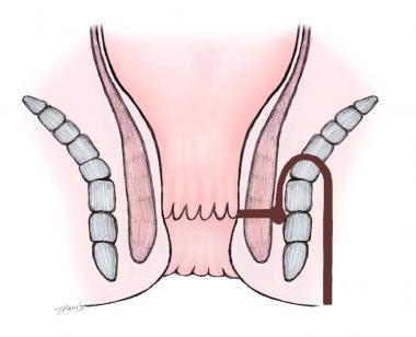 Suprasphincteric fistula.